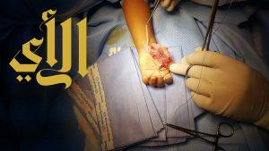 الصحة : عملية ناجحة للحفاظ على إبهام طفلة من البتر بجازان