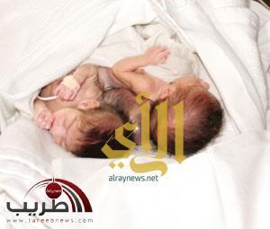 وفاة التوأم السيامي العراقي رقية