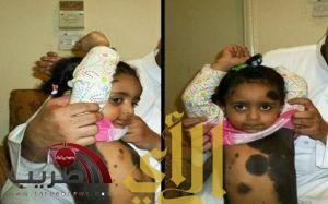"""الملك يصدر أمراً بعلاج طفلة """"الشامات"""".. و""""المدينة الطبية"""" تؤخر تقرير حالتها"""