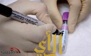 اكتشاف علاج جديد لوقف سرطان البنكرياس