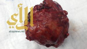 المزيد من العمليات الجراحية النوعية في مستشفى خميس مشيط العام