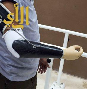 صناعة أول طرف علوي بمركز الأطراف الصناعية في مستشفى الملك فهد بجازان
