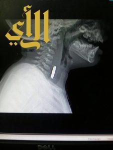 إخراج بطارية صلبة من مريء رضيع بمستشفى المجاردة العام