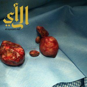 فريق طبي بمستشفى خميس مشيط ينجح في استخراج 3 حصوات كبيرة