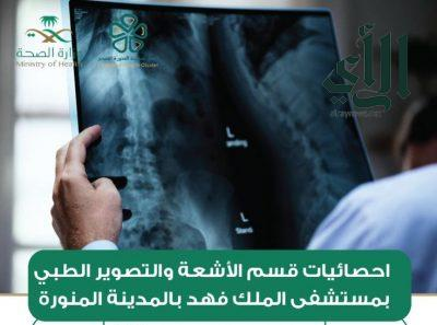 إجراء أكثر من 39 ألف فحص تشخيصي بالأشعة بمستشفى #الملك_فهد بـ #المدينة_المنورة
