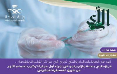 تركيب صمام الأبهر عن طريق القسطرة لمريض بمستشفى #الأمير_محمد_بن_ناصر بـ #جازان