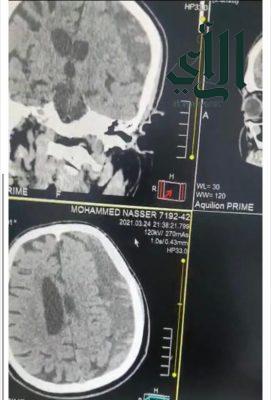 مستشفى #الملك_خالد بـ #حفر_الباطن يُنقذ حياة مصاب بنزيف في المخ