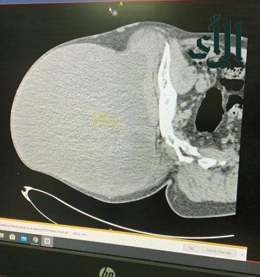 مدينة #الملك_عبدالله الطبية بـ #مكة_المكرمة تُنهي معاناة مريض من ورم الساركوما