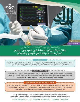 جراحة ناجحة في مستشفى #العيدابي لمصاب بجرح نازف في الفص الأيسر للكبد