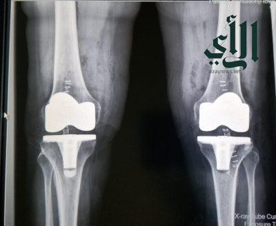 مستشفى #حريملاء العام يُنهي معاناة مريضة من احتكاك وخشونة بالركبة