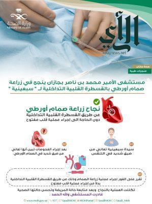 """مستشفى الأمير بجازان ينجح في زراعة صمام أورطي بالقسطرة القلبية التداخلية لــ """" سبعينية """""""