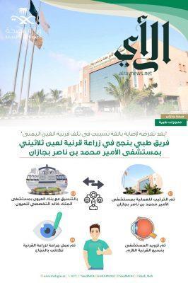 مستشفى الأمير محمد بن ناصر بجازان ينجح في زراعة قرنية لعين لمريض
