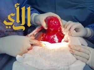 نجاح ثلاث عمليات جراحية لمقيمتين ومواطنة بمستشفى السليل العام
