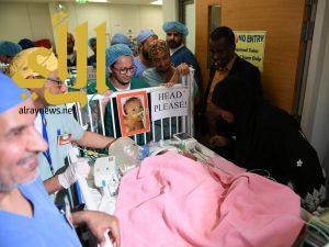 """نجاح عملية فصل التوأم السوداني """"جود وجنى"""" بمستشفى الملك عبدالله بالرياض"""