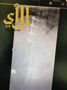 فريق طبي بمستشفى الملك فهد بالباحة يعيد لمريض أربعيني قدرتة للمشي