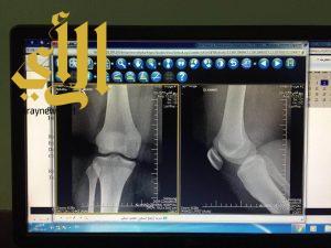 """الصحة : تدشين نظام  """"ميني باكس"""" بمستشفى أحد المسارحة وتزويد المراكز بأجهزة تصوير رقمية بجازان"""