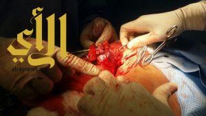فريق طبي ينجح في إستئصال ورم نادر لمقيم