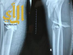 نجاح عملية معقدة لمصاب في حادث مروري في مستشفى عرعر المركزي