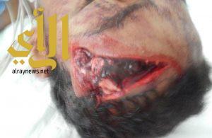 الصحة .. نجاح عملية ترميم جمجمة مواطن تعرضت لكسور بليغة