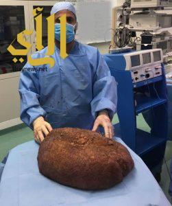 الصحة: إستئصال ورم وزنه ١٥ كجم من فخذ مريض سمنة يزن ٢٥٠ كجم