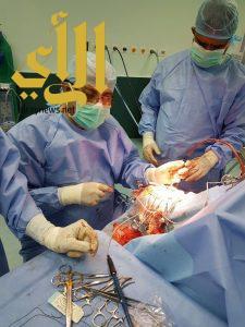 الصحة : فريق طبي ينقذ حياة طفل تعرض لنزيف حاد في الدماغ