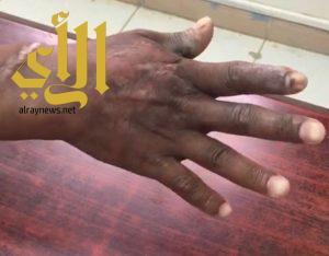 فريق طبي ينجح في إنقاذ يد مقيم من البتر في مستشفى صامطة العام