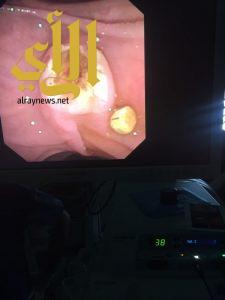 الصحة : إجراء عملية تنظير القنوات المرارية لمريض مسن