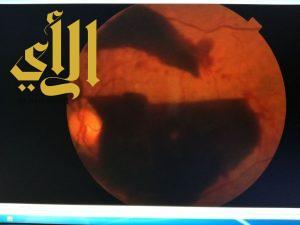 الصحة : نجاح عملية إعادة البصر لمسنة أجريت في مجمع الملك فيصل الطبي بالطائف
