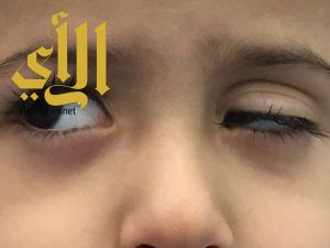 """جراحة ناجحة تنهي معاناة طفل من """" إرتخاء الجفن"""" بمستشفى بريدة المركزي"""