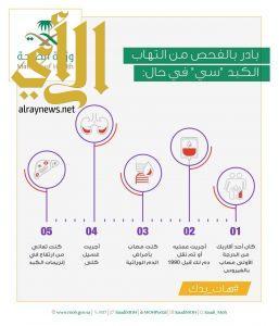 الصحة تدعو للمبادرة بفحص إلتهاب الكبد (سي)