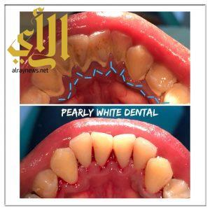 أمراض الفم والأسنان كثيرة اسبابها وطرق علاجها
