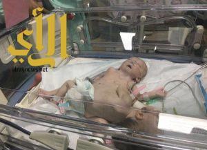 وصول الطفلتين السياميتين من غزة إلى عمّان في طريقهما إلى المملكة